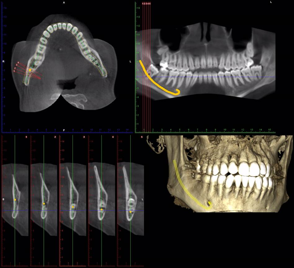 Tomografia computerizata CBCT