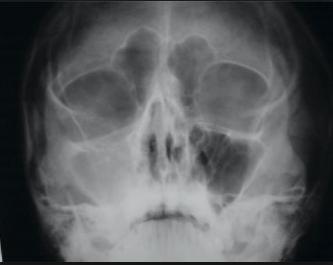 Radiografia de sinus maxilar